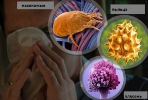 Лечение аллергического насморка