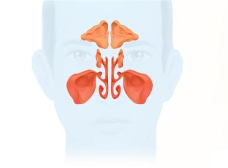 Синусит: причины, симптомы, диагностика и лечение